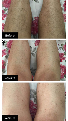 My legs have completely transformed. I can't belive it , i am so HAPPY! I've told everyone i know because if my results are like this i want all of my friends to enjoy the benefits the same way.