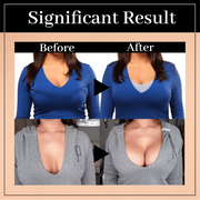 SuperLift™ Wireless Posture Support Bra