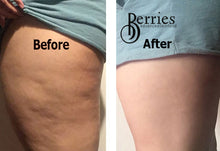 Load image into Gallery viewer, Shop as Bundle & Save- No1 Stretch Mark Proof & No2 Cellulite Proof - BerriesSkinCare