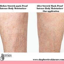 Load image into Gallery viewer, No.1 Stretch Mark Proof - BerriesSkinCare