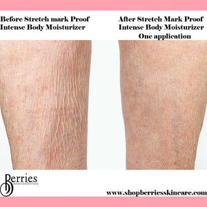 No.1 Stretch Mark Proof - BerriesSkinCare