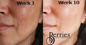 Pigmentation Solutions - BerriesSkinCare