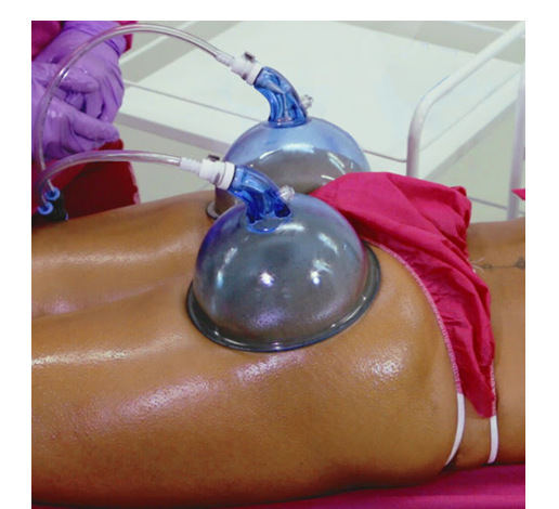 Vacuum Therapy with Butt Lift Online Training