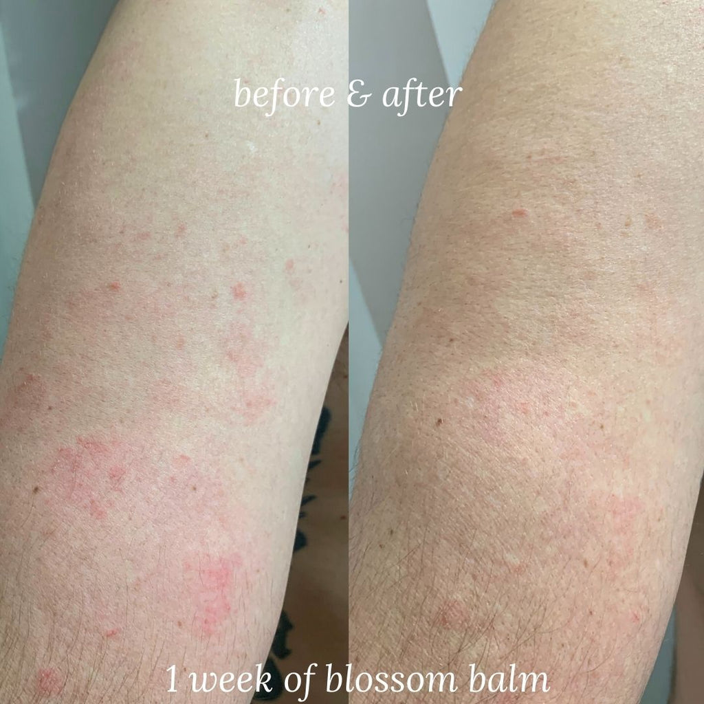 Blossom Balm · Multi-Use