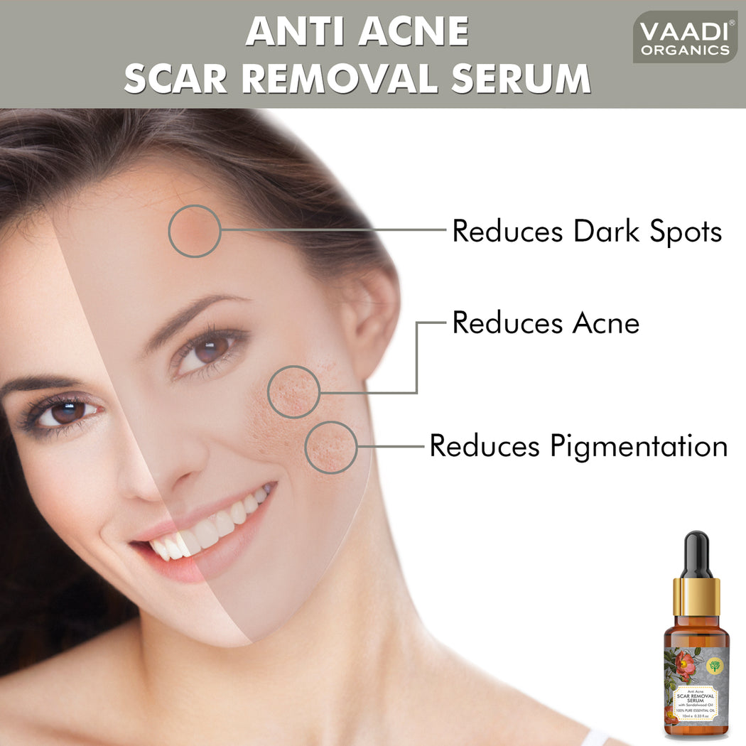 Organic Scar Removal Serum (Pure Mix of Sandalwood Oil, Steam Distilled Neem & Fenugreek Extract) - Reduces Acne, Dark Spots & Pigmentation (10 ml/ 0.33 oz)