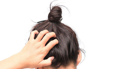 THE SECRET CAUSE BEHIND YOUR ITCHY SCALP IS THIS