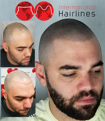 Scalp Micropigmentation by International Hairlines; filling in dots on the scalp with tattooing procedure, before and after