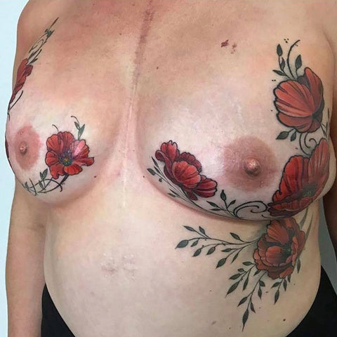 Red peony tattoo on breasts and ribcage by Stacie-Rae, medical tattoo artist specializing in nipples and personal healing!