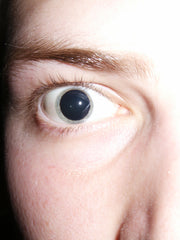 Fully dilated pupil