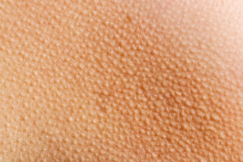 bumps on skin after waxing