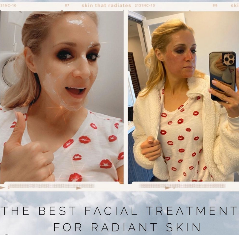 Episode 20: The best facial treatments for radiant skin!