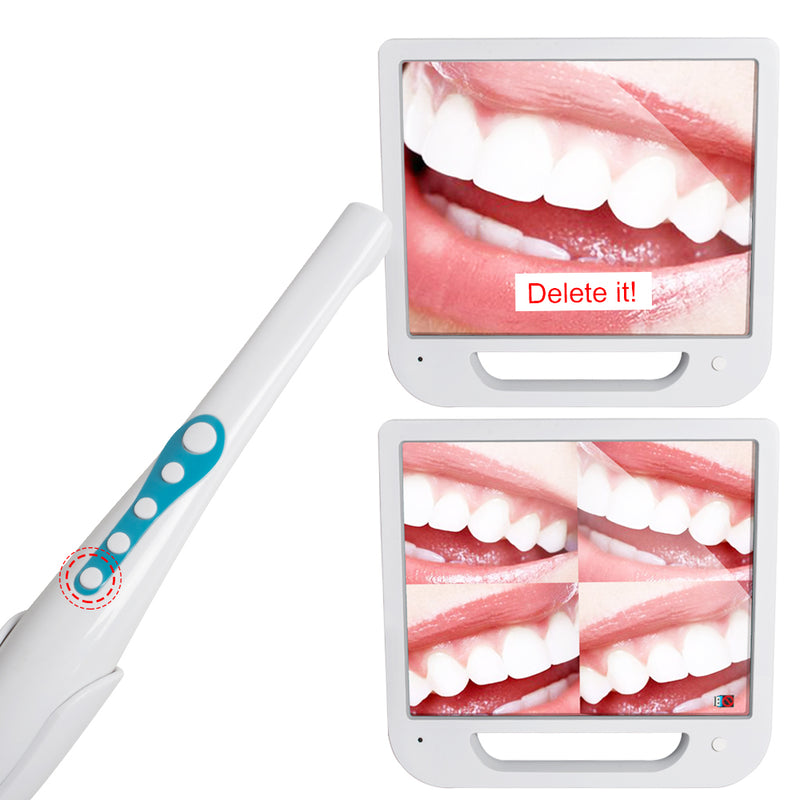 High-Definition Digital LCD AIO Monitor + Dental Intra Oral Camera