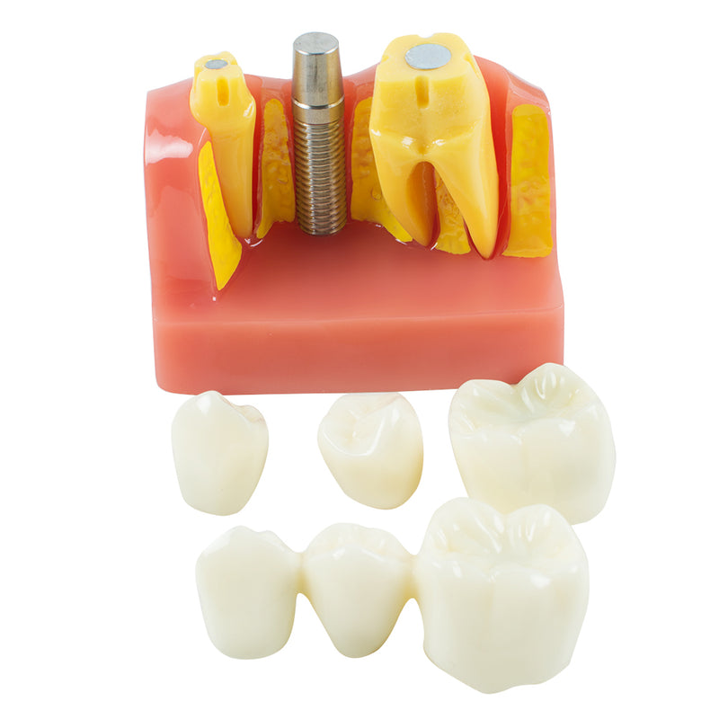 Dental Demonstration Teeth Model Implant Analysis Crown Bridge