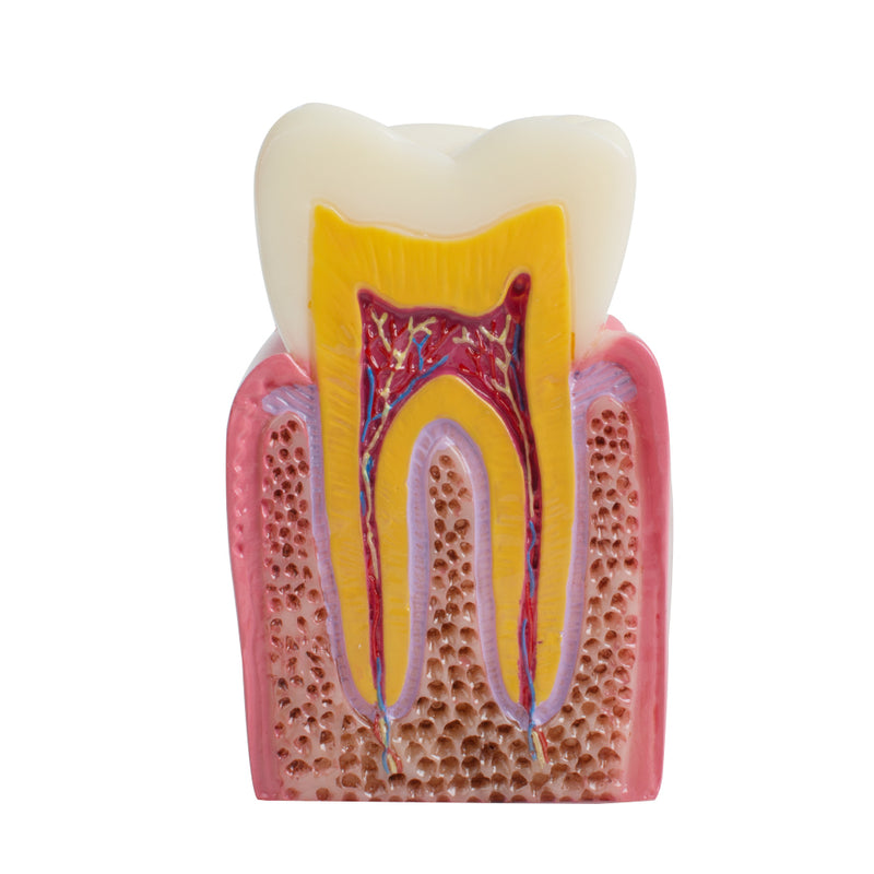 Dental Patient Education Teeth Model 6 Times Caries Comparation Study Model