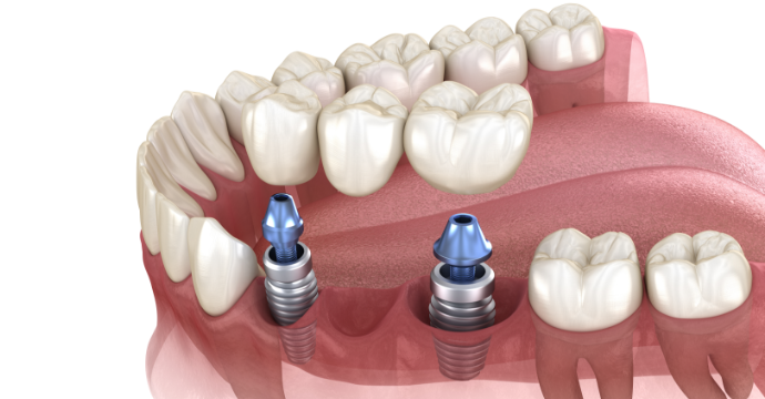 DENTAL IMPLANTS: TYPES AND HOW TO - Dr. Nosheen