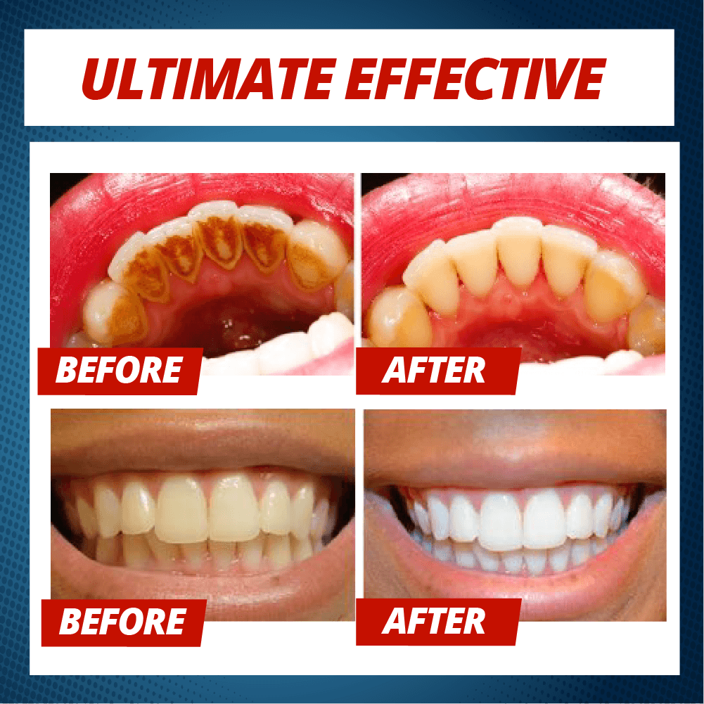 Intensive Stain Removal Whitening Toothpaste - 50% OFF