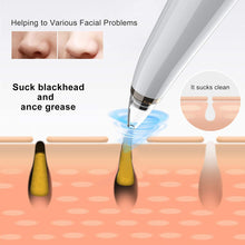 Load image into Gallery viewer, Sysbow® Blackhead Remover Vacuum