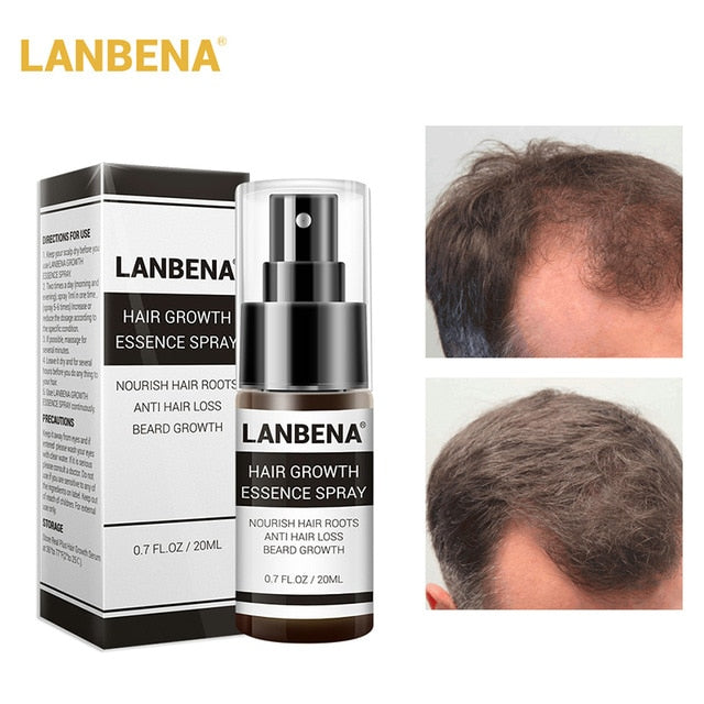 Hair Care Essence Spray Restoration Hair Loss Treatment Liquid Dense Essential with many nutrients for hair healthy YF2018