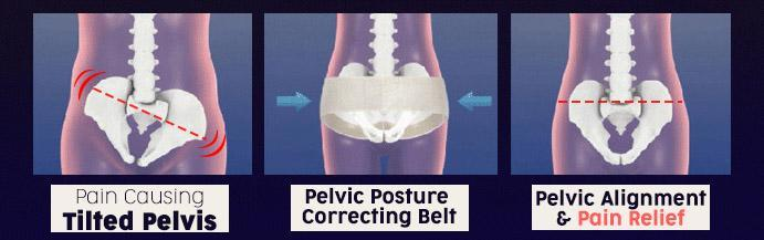 Hip-Up Pelvic Posture Correcting Belt-Universal For All Ages