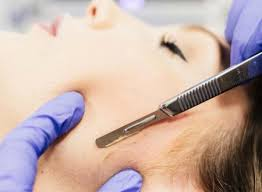 Dermaplaning Treatments