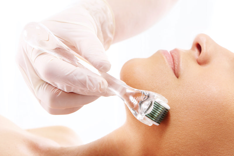 Why skin needling is the treatment for 2020! Start in your 20s, and continue to 60s.