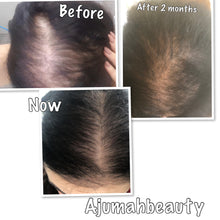 Afbeelding in Gallery-weergave laden, Hot Hair Growth Oil - Ajumahbeauty