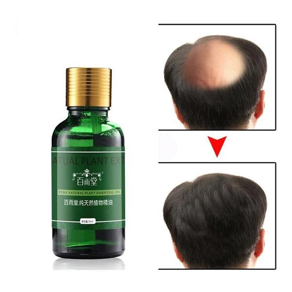 Hair Growth Essential Oil 100% Original & Authentic