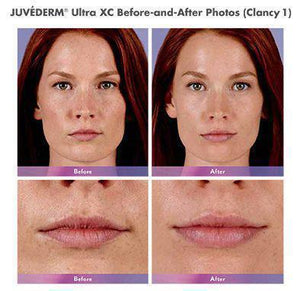 Juvederm Ultra Plus XC - Treatment for Lips and Nasolabial Folds