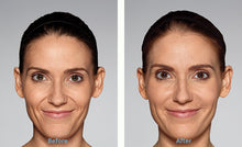 Load image into Gallery viewer, Restylane Refyne - Treatment for Nasolabial Folds