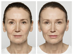Restylane Lyft - Treatment for Cheeks