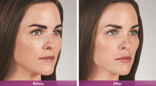 Load image into Gallery viewer, Juvederm Volbella - Treatment for Lips
