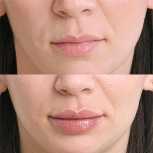 Restylane Kysse Lip Treatment