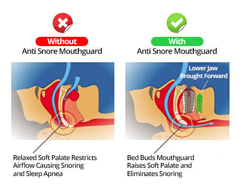 bed buds anti snoring device - designed by an ent doctor - 3 piece snoring  cure