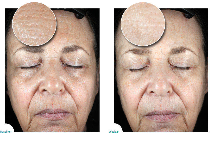 Woman before and after of clinical testing to show improvement in wrinkles and fine lines
