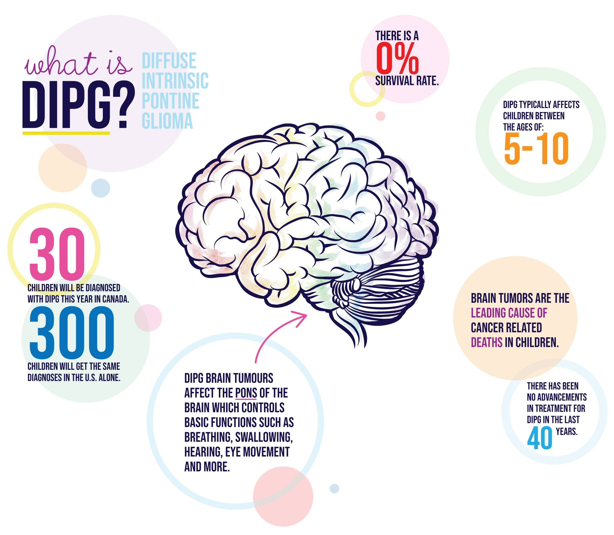 infographic explaining DIPG - Diffuse Intrinsic Pontine Glioma, a form of childhood brain cancer with no cure