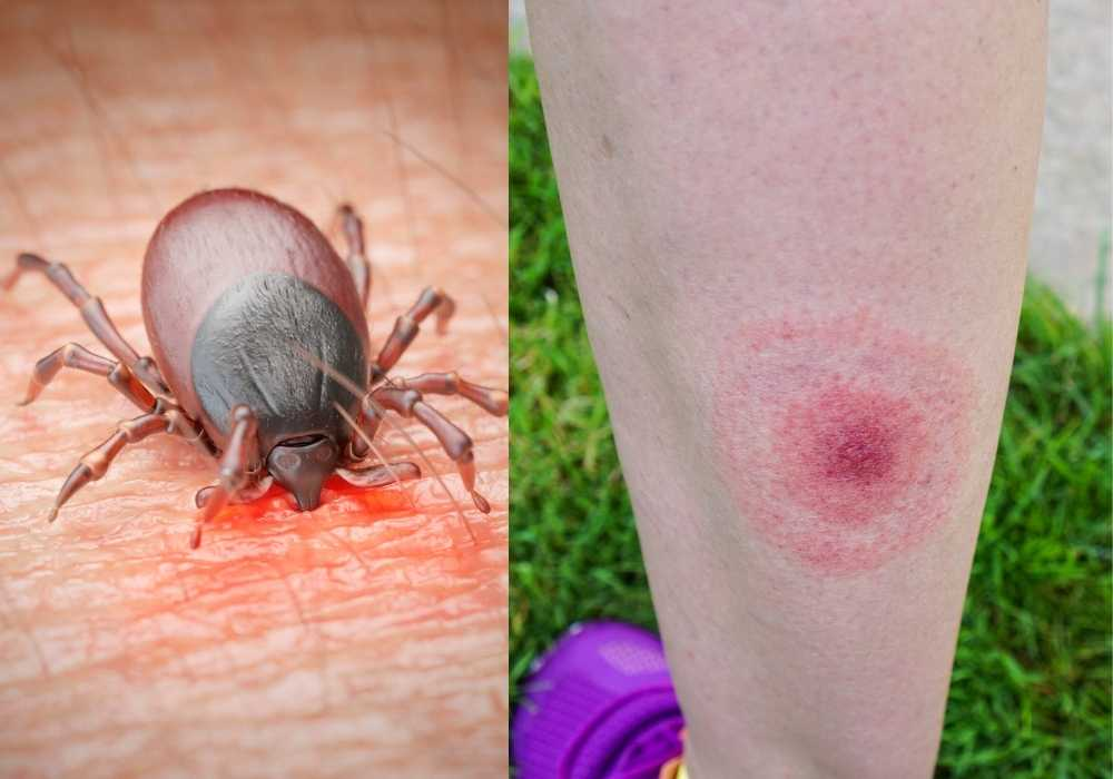 How Lyme Disease Is Transmitted?