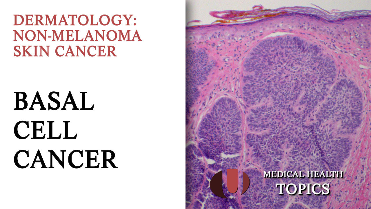 Basal Cell Cancer Overview
