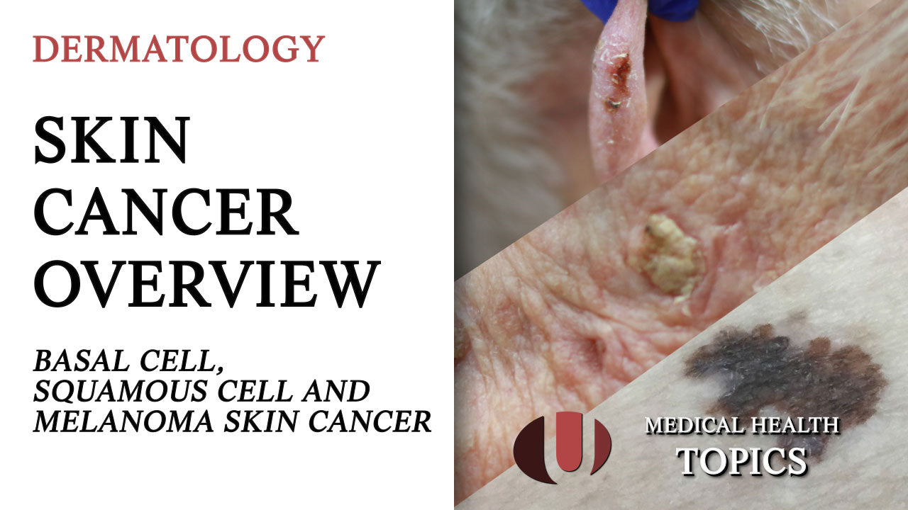 Skin Cancer Overview