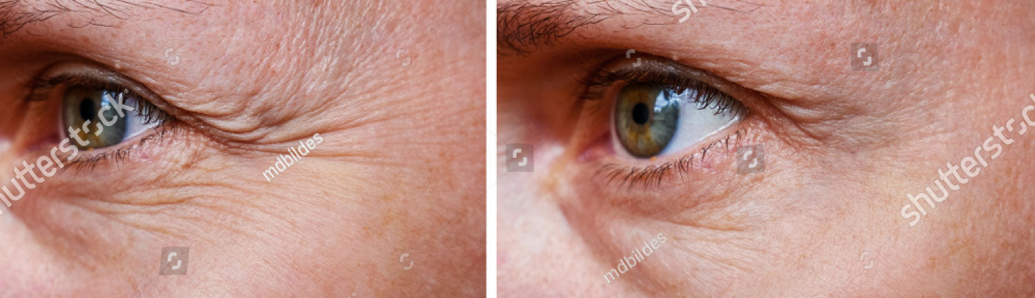 Before After ace-ferulic