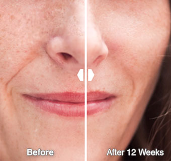 Ace-Ferulic Before After
