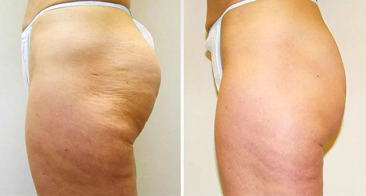 Before After Stemuderm