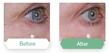Before After Eyevage