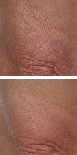 Before After revivatone