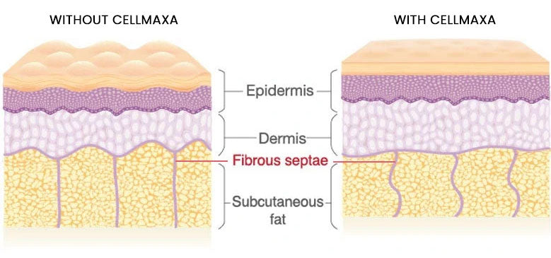 With & Without Cellmaxa