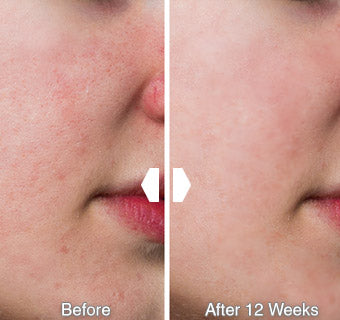 Glowpeel Before After