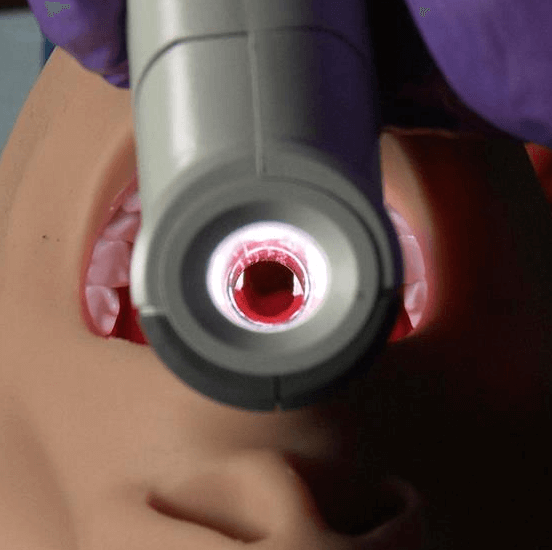 Vie Scope® Direct Laryngoscope