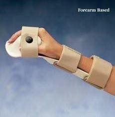 How Much Is Carpal Tunnel?