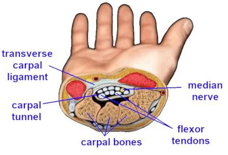 Figure 1: The underlying problem in carpal tunnel syndrome is that the flexor tendons, running next to the median nerve, become irritated, swell, and crush the adjacent median nerve.