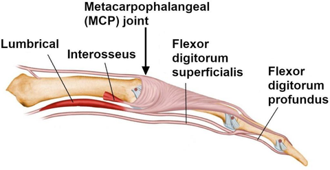 Figure 2: Contraction of the 2 tendons running below the finger will curl the finger starting at the MCP (knuckle) joint.