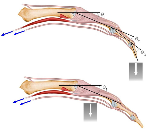 Figure 3: Clicking a conventional mouse (top) requires movement of all 3 finger bones. This results in more tendon force and longer tendon excursion into the carpal tunnel. Clicking the RBT mouse (bottom) requires fewer bone movments and shorter tendon excursion.